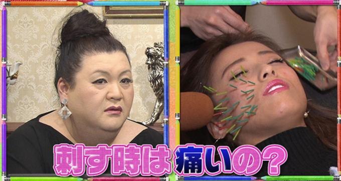 KADOMORI小颜矫正的刺猬美容针灸让你完美蜕变无敌小脸!